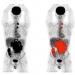 Imagen de un PET/TC convencional, con el cuerpo humano adquirido a tramos y posteriormente reconstruido en conjunto. / Quibim